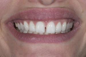 Anna S Crowns Back Teeth  Before 7112