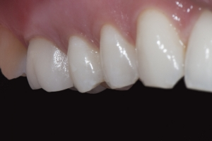 Anna X Crowns Back Teeth After 7116