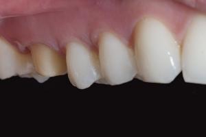 Anna X Crowns Back Teeth  Before 7108