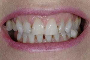 Anne-Teeth-Stains-S-B4-9794