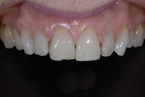 Anne-Teeth-Stains-X121-B4-9797