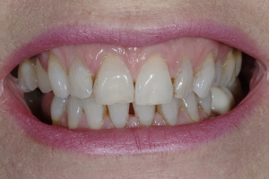 Anne-Teeth-Stains-S-B4-9794