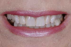 Anne-Teeth-Stains-S-Post-0512-b
