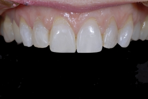 Anne-Teeth-Stains-X121-Post-0519