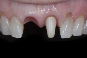 April Implant Crown X1_2KL1923