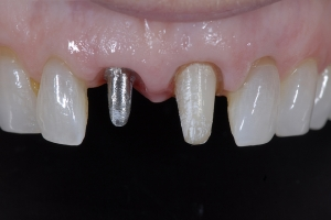April Implant Crown X2 I Coping Zirk FILE025