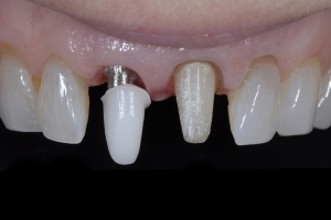 April Implant Crown X3a I Coping Zirk _2KL2653