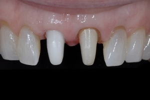 April Implant Crown X4 I Coping Zirk FILE1138