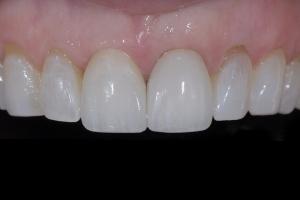 April Implant Crown X5 FILE035 (1)