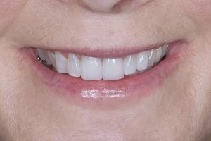 April Implant Crown X6 4292 2