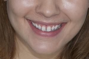 Ashley Laser Gum Lift F B4 2