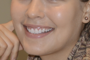 Ashley Laser Gum Lift F Post 0025 3