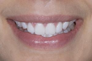 Ashley Laser Gum Lift S Post 2486