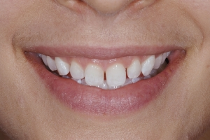 Ashley Laser Gum Lift S B4 0195