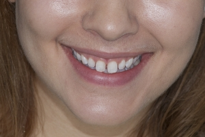 Ashley Veneers & Gum Lift F  Before 2