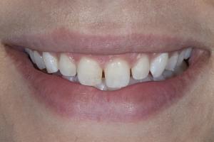 Ashley Veneers & Gum Lift S B4 3841