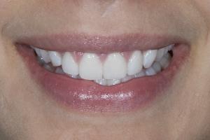 Ashley Veneers & Gum Lift S Post 2486