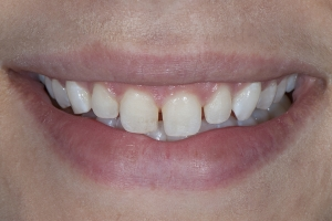 Ashley Veneers & Gum Lift S B4 3841