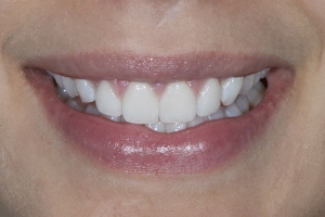 Ashley Veneers & Gum Lift S Post 2486