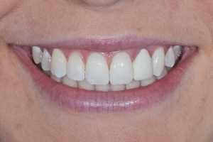 Ashley Veneers & Whitening S B4 2132