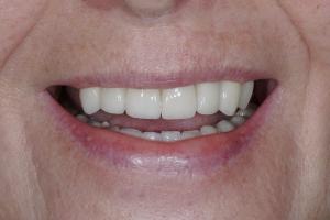 x Barbara Implant Temporary L S B4a 1460 (1)
