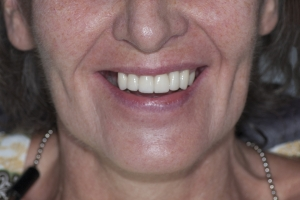 Barbara-Implant-Temporary-F-B4