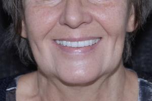 Barbara-Implant-Temporary-F-Post-0502-copy