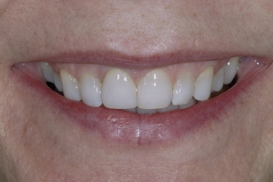 Betsey Laser Gum Lift S Post 1126 (1)