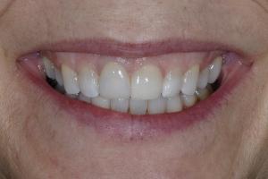 Betsey Laser Gum Lift S B4 1114