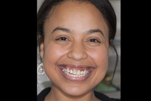 Bianca Veneers & Orthodontics F  Before 4897