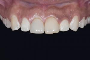 Bianca Gummy Smile X121F b4 _DSC6099