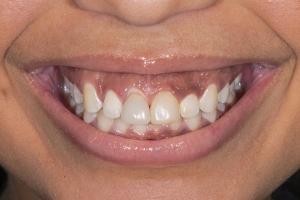 Bianca Gummy Smile S B4_DSC4890