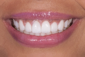 Bianca Gummy Smile s Post 5142D