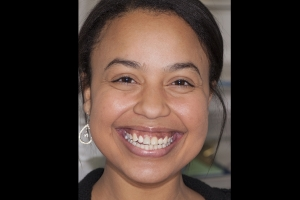 Bianca Surgically Facilitated Braces F  Before 4897