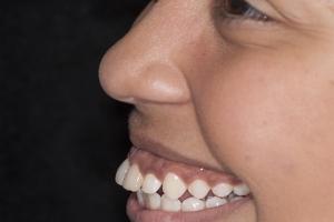 Bianca Surgically Facilitated Braces P1 B4b 4906