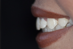Bianca Surgically Facilitated Braces P1 Post
