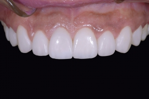 Bianca Surgically Facilitated Braces X121F Post 5149 (1)