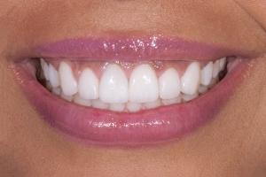 Bianca-Gummy-Smile-s-Post-5142D