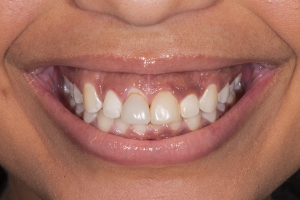 Bianca Veneers & Gum Lift S  Before 4890