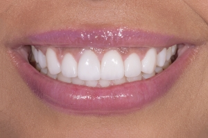 Bianca Veneers & Gum Lift S After 5142D