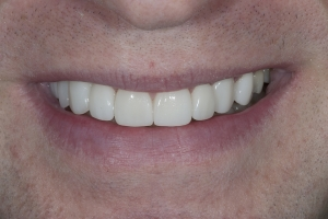 Bill Veneers & Orthodontics S Post 2040