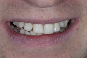 Bill Veneers & Orthodontics S B4 1397