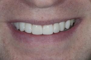 Bill Veneers & Orthodontics S Post 2040