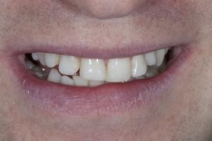 Bill Implant Bone Graft S 11 4-7 1397 (1)