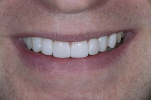 Bill Implant Bone Graft S 12 12-13_2KL2040_1 (1)