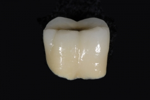 Bob X1 Crowns Back Teeth Before 2168