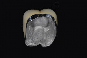 Bob X2 Crowns Back Teeth Before 2169