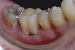 Bob X4 Crowns Back Teeth After 2181