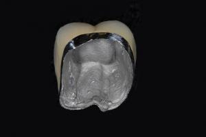 Bob X2 Crowns Back Teeth Before 2169