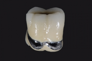 Bob X3 Crowns Back Teeth 2170